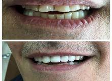 علاج وتجميل الاسنان