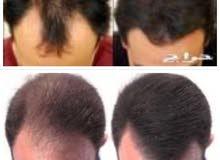 علاج الشعر بمنتجات مره رهيبه