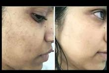 تصفية الوجه والقضاء على التصبغات طبيعي100%