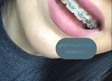 تقويم اسنان زينه ألماني اصلي