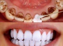 اقوى منتج لتبيض الاسنان مع الضمان