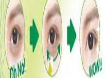 جهاز ازالة الهالات السود من حول العين