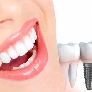 كرستال  الاسنان