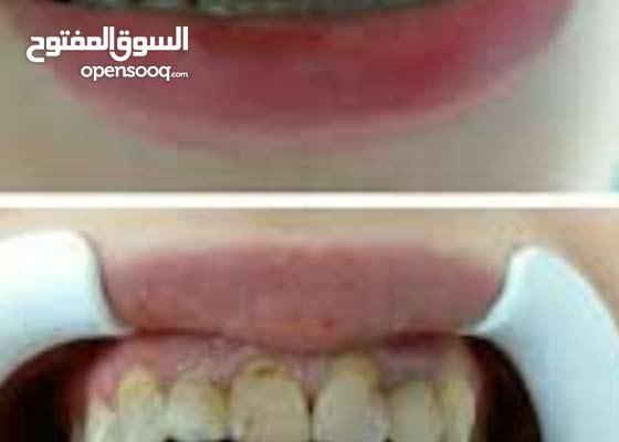 تركيب اسنان بالاقساط