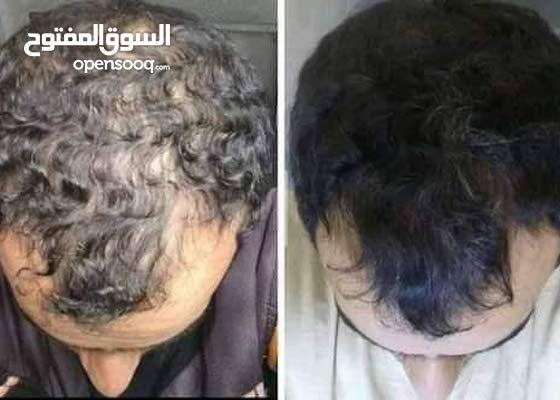 منتوج للقضاء على مشاكل تساقط الشعر