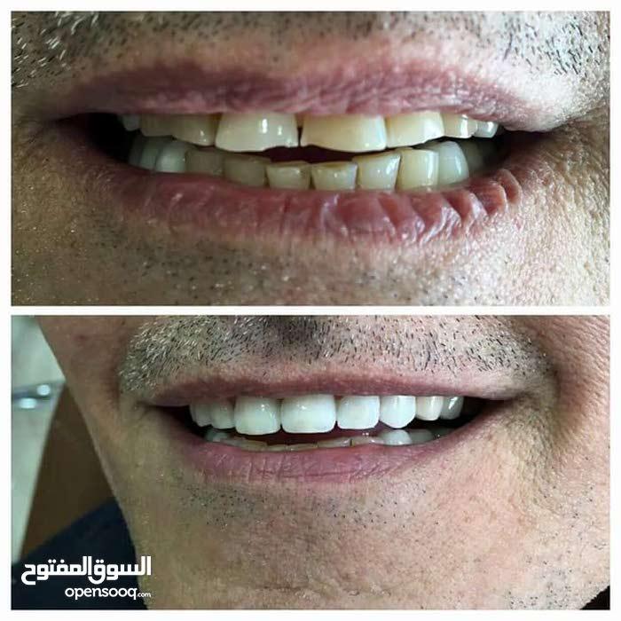 علاج و تجميل الاسنان