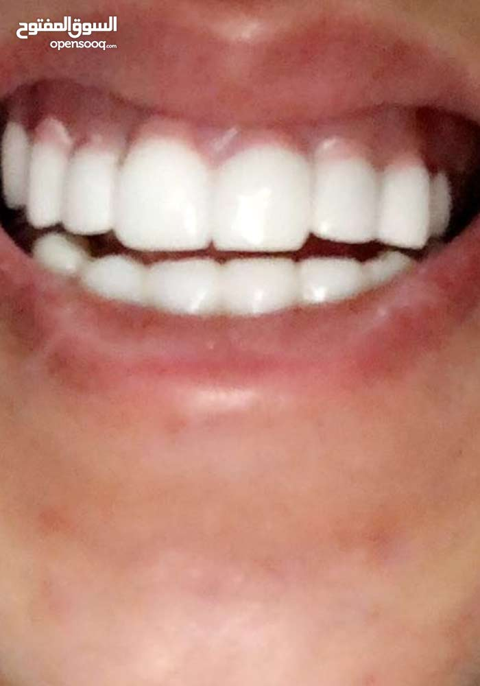 تركيب اسنان تقسيط ...افضل الانواع