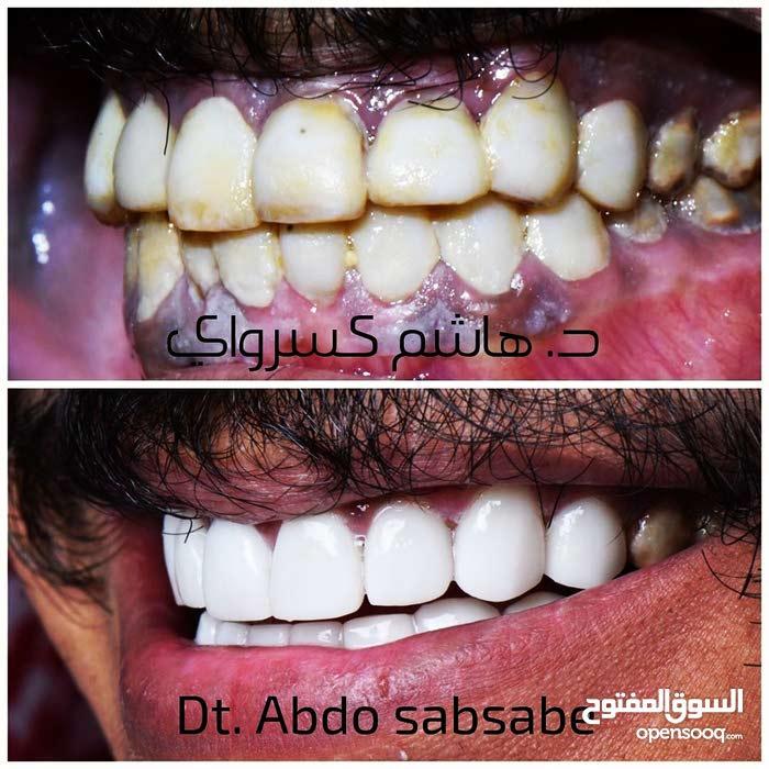 فني أسنان سوري في الرياض