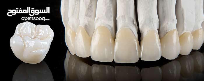 تركيبات اسنان -ابتسسامة هوليود بسعر التكلفة